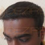 hair transplant Fut process