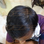 hair transplant best results in india