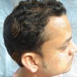 hair transplant cost per grafthair transplant cost per graft
