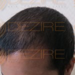 hair transplant graft growth timeline