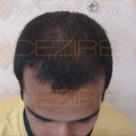 hair transplant growth after 6 monthshair transplant growth after 6 months