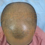 hair transplant growth stages
