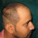 hair transplant in Delhi low cost