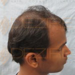 hair transplant is successful or not