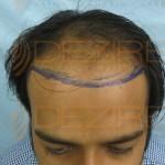 hair transplant progress timeline