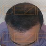 hair transplant surgery details