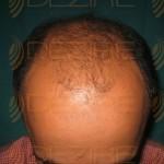 hair transplant surgery price
