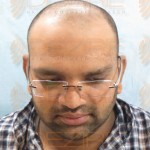 hair transplant surgery safe or not