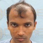 hair transplants gone wrong pictures
