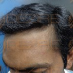 how to stop male pattern baldness naturally