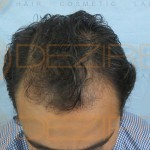 is hair transplant successful