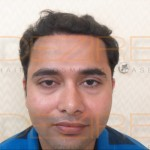 male hair transplant cost