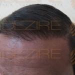 mens hair growth vitamins