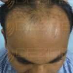 men's hair replacement reviews
