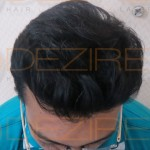 non surgical hair replacement cost in India