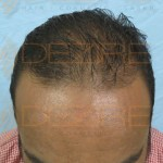 non surgical hair restoration options