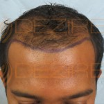 reconstructor for hair