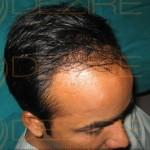 regrow hair naturally on bald head