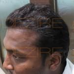 restore hair cost