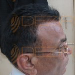 robotic hair transplant cost in india