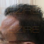 robotic hair transplant review