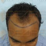 rogaine hairline success