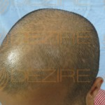 stages of hair transplant growth pictures