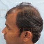 successful hair transplant celebrities