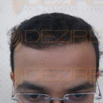 truth about hair transplant