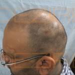 types of hair transplant surgery